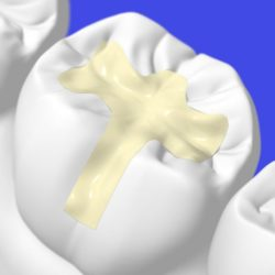 Пломбп зубная