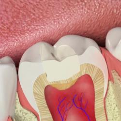 Виды пломб зубных