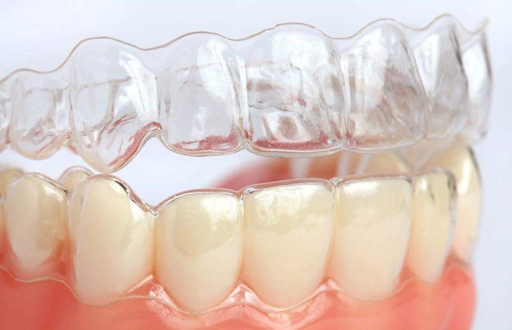 Элайнеры на зубы