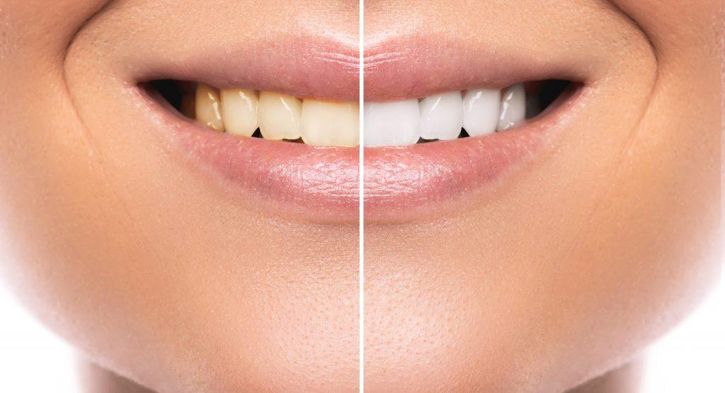 Отбеливание зубов плюсы и минусы