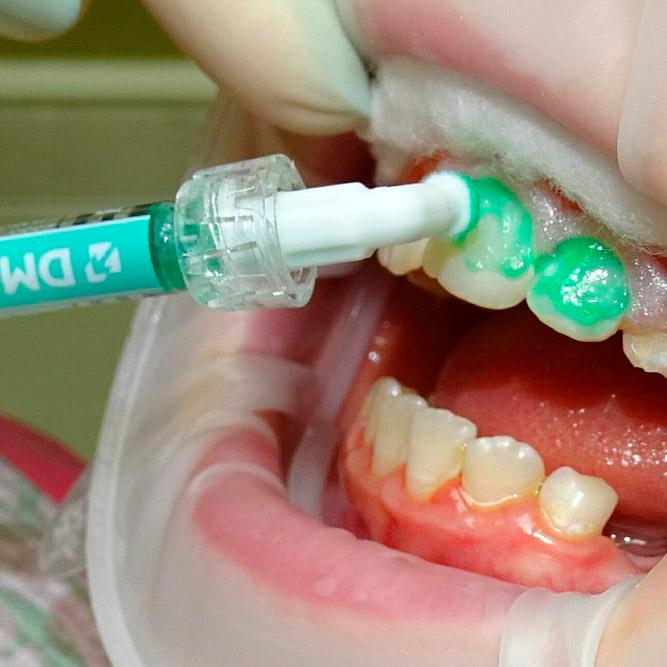 Лечение зубов Icon