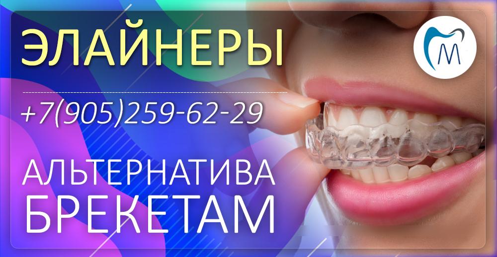 Элайнеры ортодонтия